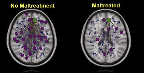 Abuzul sever din copilărie ar putea afecta straturile de mielină ale creierului